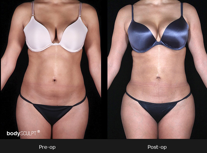 BodyTite™ - Before & After Photos