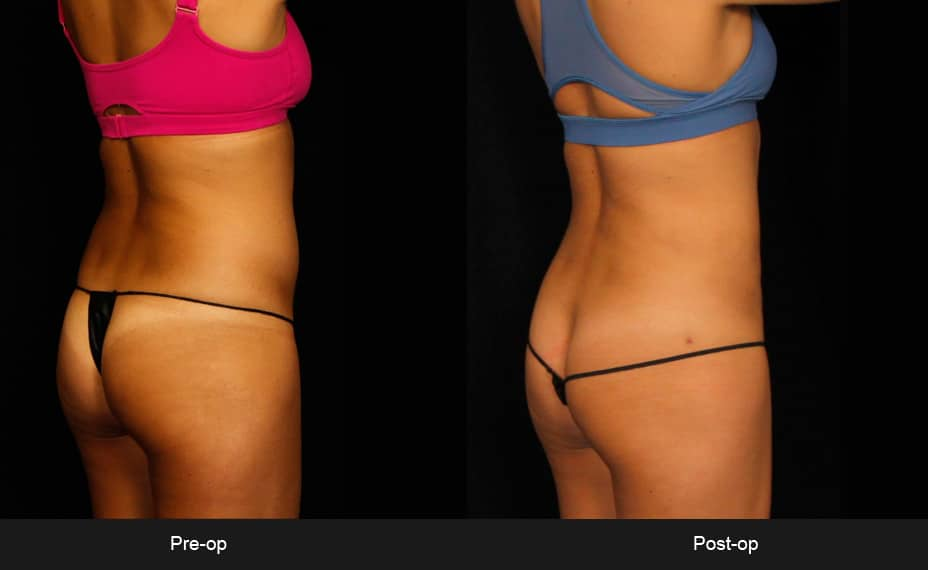BodyTite™ - Patient 8 Before & After Photos