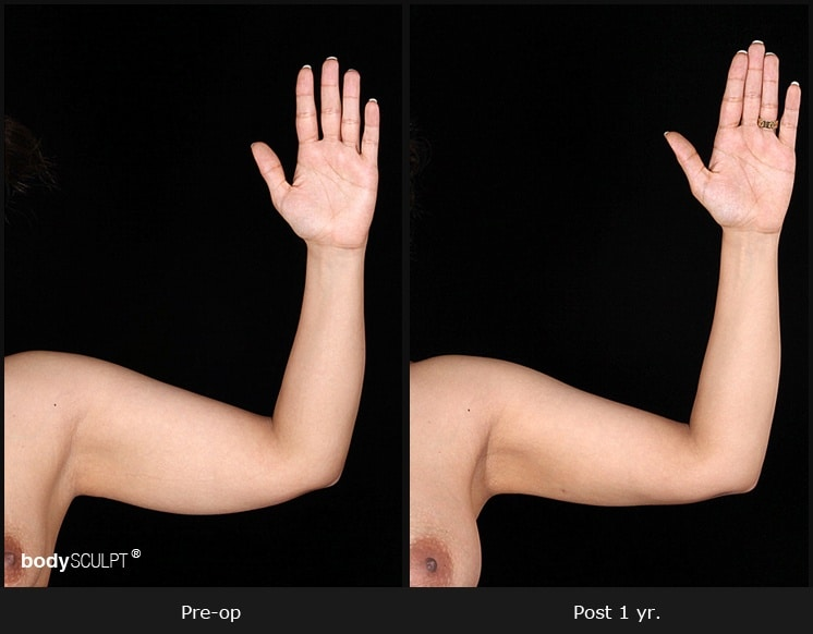 Scarless Female Arm Lift - Before & After Photos